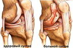 Артрейд можно принимать как профилактическое лекараство