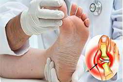 Валюфикс устраняет боль при воспалении косточки
