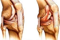 Сустадонт способствует восстановлению сустав