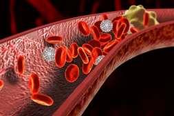 Лекарство Гипертофорт разбивает сгустки крови.