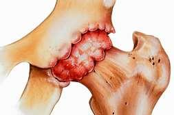 Препарат Hemp Gel показан при предрасположенности к проблемам в суставах.