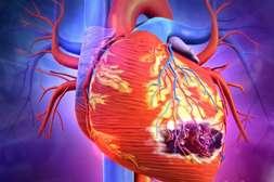 Состав Кардионекс снижает риск инфаркта, инсульта, развития атеросклероза.