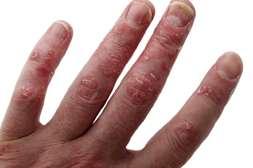 Быстро снимает первичные симптомы средство Экзолит.