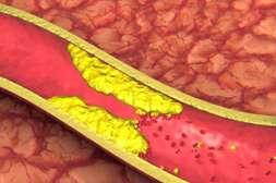 Состав Артериаля очищает стенки сосудов от холестериновых бляшек.