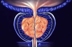 Препарат Уротекс Форте лечит простатит, предотвращает развитие заболевания.